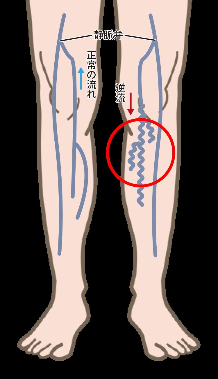下肢静脈瘤の説明。正常な静脈と逆流した静脈。